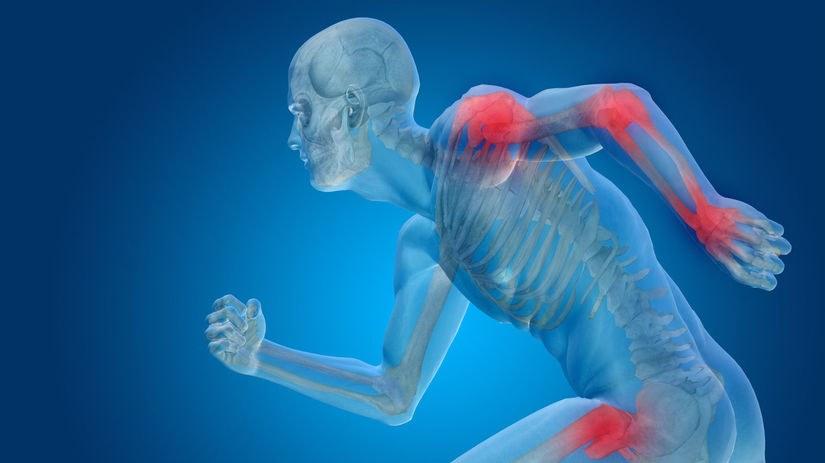 Prečo je výživa a starostlivosť o kĺbový aparát taká dôležitá!